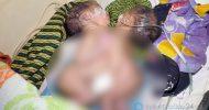 মৌলভীবাজারে শরীর জোড়া লাগা দুই কন্যা শিশুর জন্ম