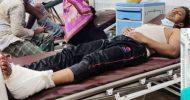 হবিগঞ্জের বাহুবলে সহোদর ভাইয়ের সন্ত্রাসী হামলায় আহত জালালের অবস্থা আশঙ্কাজনক